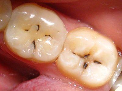 Что такое зубной кариес